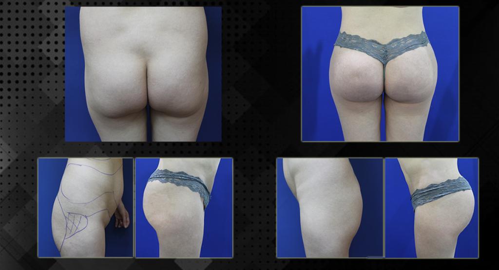 ניתוחים לעיצוב הגוף 02