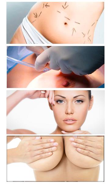 ניתוחי חזה