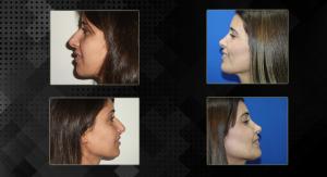 ניתוחי פנים, ניתוח אף